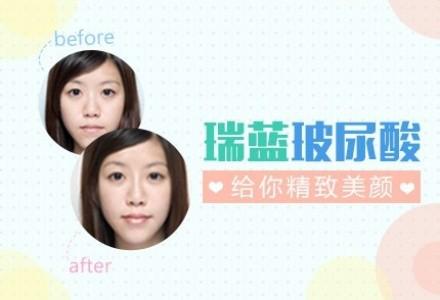 正品进口瑞蓝玻尿酸 让你水润饱满 除皱塑动人脸形