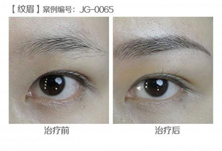 韩式半永久纹眉 塑造精致眉形