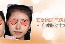 【北京自体脂肪丰太阳穴】