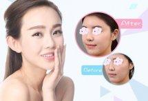 【郑州韩国进口玻尿酸注射美容】