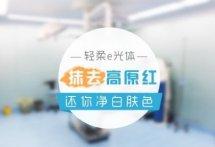 【北京E光去红血丝】