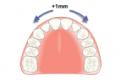 牙齿矫正医生方案里的邻面去釉,究竟是什么?