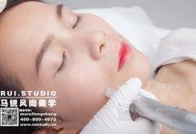 【北京MTS皮肤管理】