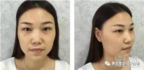 全切双眼皮 肋软骨隆鼻 缩鼻翼手术,最明显的前后对比效果图 蜜颜整形优惠