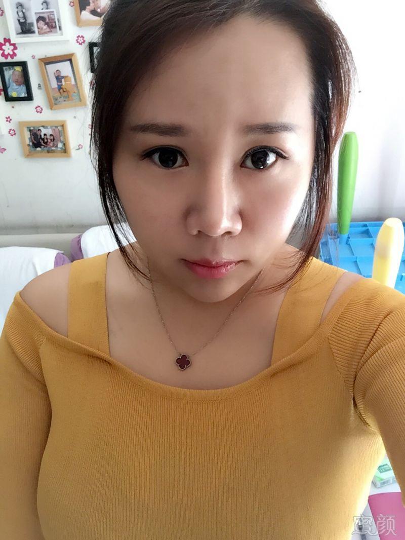 北京炫美医疗美容诊所鼻综合整形案例和效果图:今天来