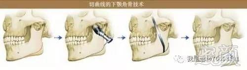 下颚骨吸脂术视频