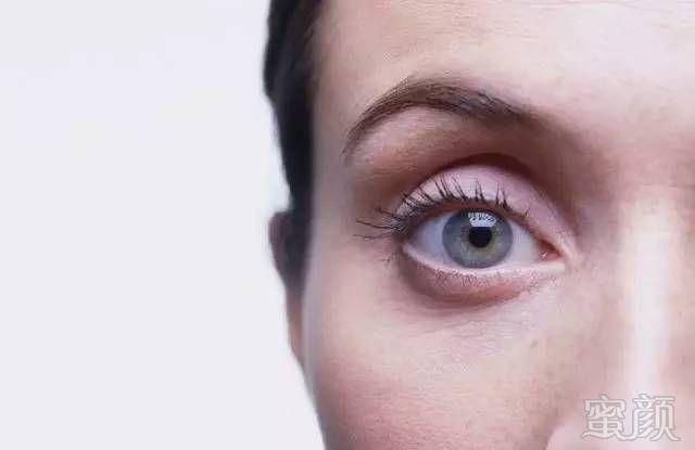 新闻列表 眼窝凹陷填充,重现眼部活力     一般戴眼镜的人的眼窝看