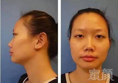 鼻翼缩小 溶脂瘦脸真实整形案例 前后对比效果图分享