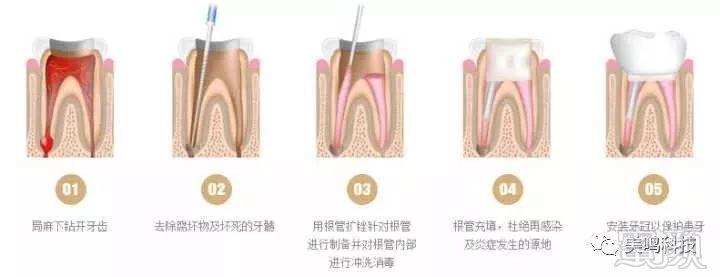 我们看看详细步骤:     根管治疗是为了拯救牙髓感染的存在.