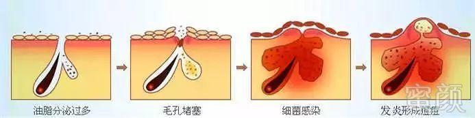 豆豆生长过程图画步骤