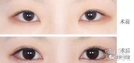 开眼角手术后饮食注意什么