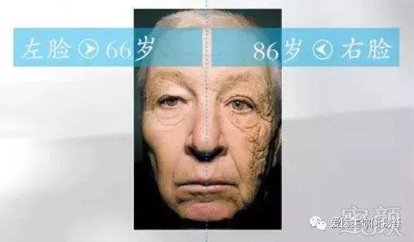 注射等微整在面部年轻化,抗衰老的综合解读图片