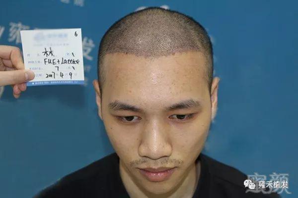 (9图     术后,小林的新头发按部就班地生长,大概半年面貌焕然一新图片