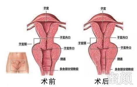 老女人的阴唇_处女摸破损;     阴道宽大;     阴唇不会精巧紧致;     阴蒂部