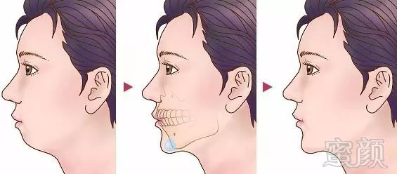 """下巴的美学标准  """"上半张脸决定你有多美,而下半张脸决定你有多丑!"""