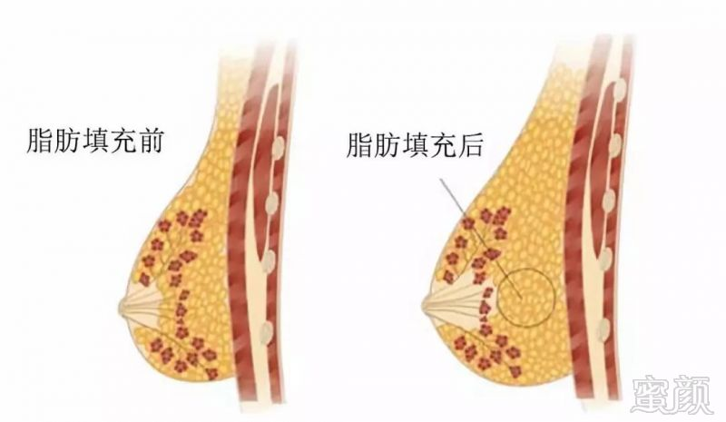 自体脂肪隆胸的适应症