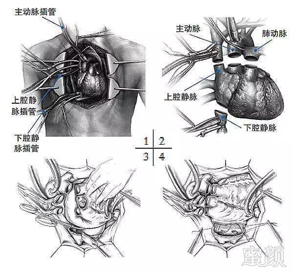 肝脂肪病变的手绘图