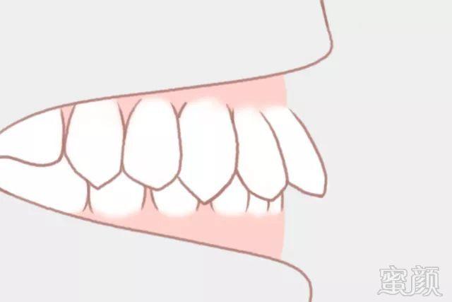 矫正牙齿的那些事儿!
