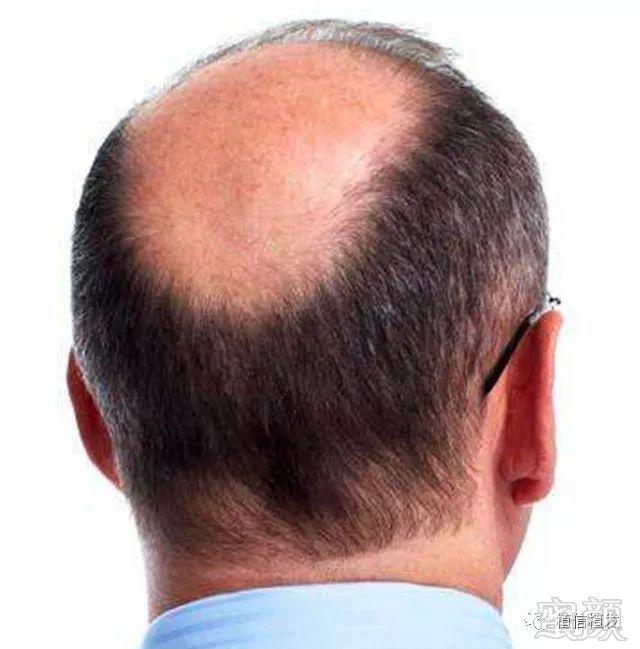 2,秃顶植发前要先确认后枕部头发情况