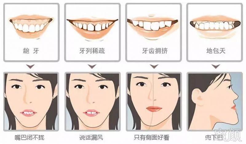 牙齿矫正第一步丨正确认识哪些牙齿属于畸形牙!