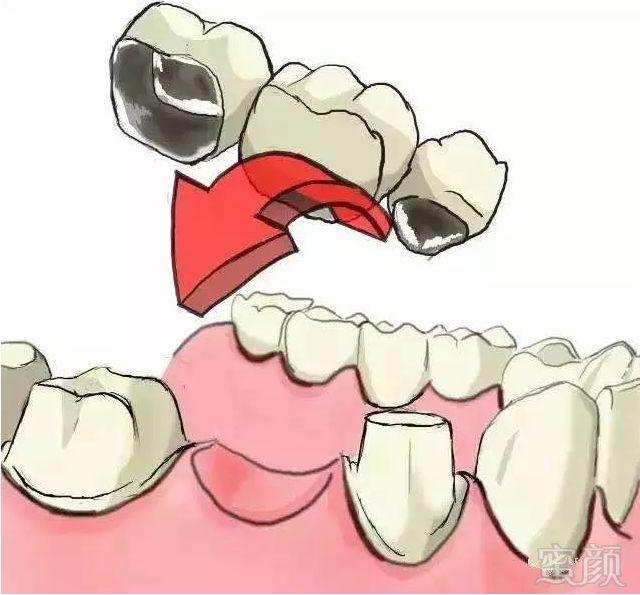 新闻列表 种植牙过程图解     缺牙后很多人都会想着去镶牙,但是镶牙