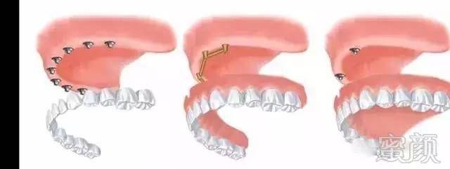 全口牙齿缺失种植治疗的各种选择((1) 固定式(2) 杆卡式可摘义齿(3)