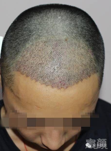 植发手术后怎样清理血痂