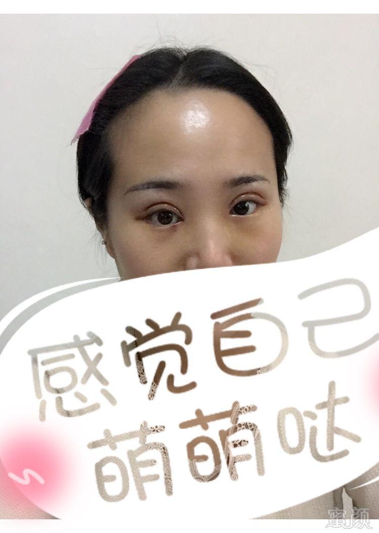 郑州明星医疗美容诊所眼综合整形案例和效果图:楼楼从