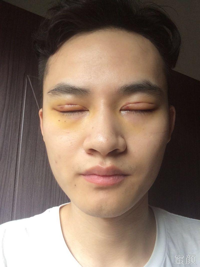 部惊现淤青_术后一周,没有瘀血淤青这些,眼睛有精神多了,医院也一直在跟进恢复