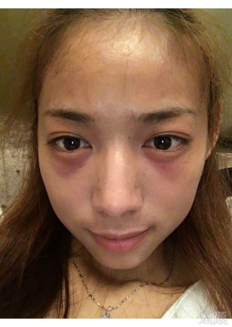 部惊现淤青_医院列表  今天是做完第二天眼睛不是很肿,眼袋部位有点淤青,由于这