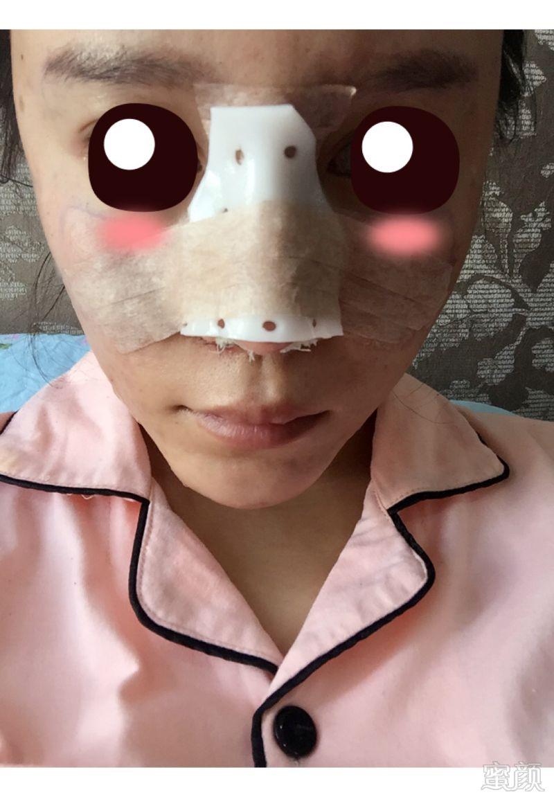 北京炫美医疗美容诊所鼻综合整形案例和效果图:一直都