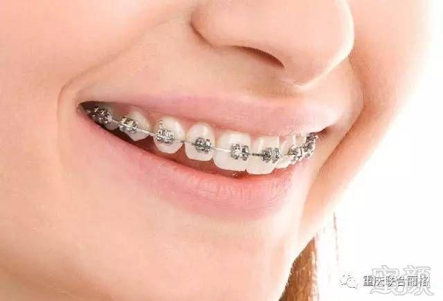 表面光滑,体积小巧,结实耐用,有助于牙齿的完美排列.