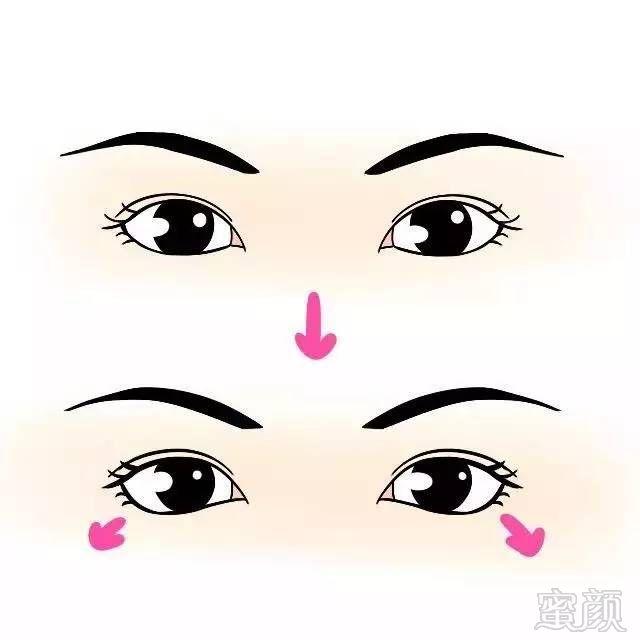 所以后来不仅做了隆鼻加高了山根,     也调整了鼻尖的形状,整个鼻子