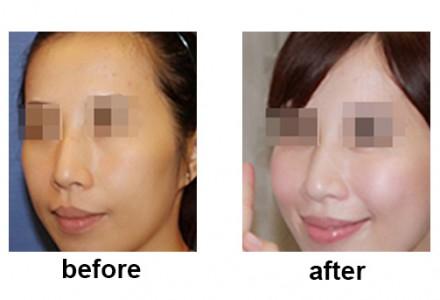 北京悦丽汇自体脂肪填充面部 让面部更立体