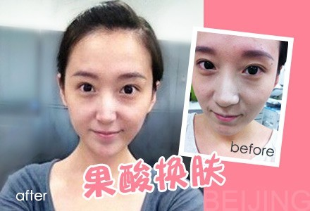 改善痘疤细致毛孔 初生肤质重焕年轻亮泽