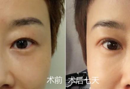 三仁6D精雕魅眼术