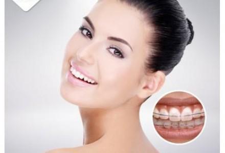 北京牙齿矫正-