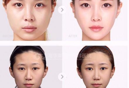 肉毒素拯救肥大咬肌塑抢镜小脸 看脸时代让你赢