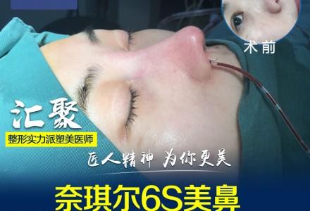 广州晨曦鼻综合-