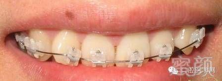 自锁托槽图片_牙齿矫正知识科普帖:正畸牙套装置部件详解(附图片)-蜜颜整形优惠