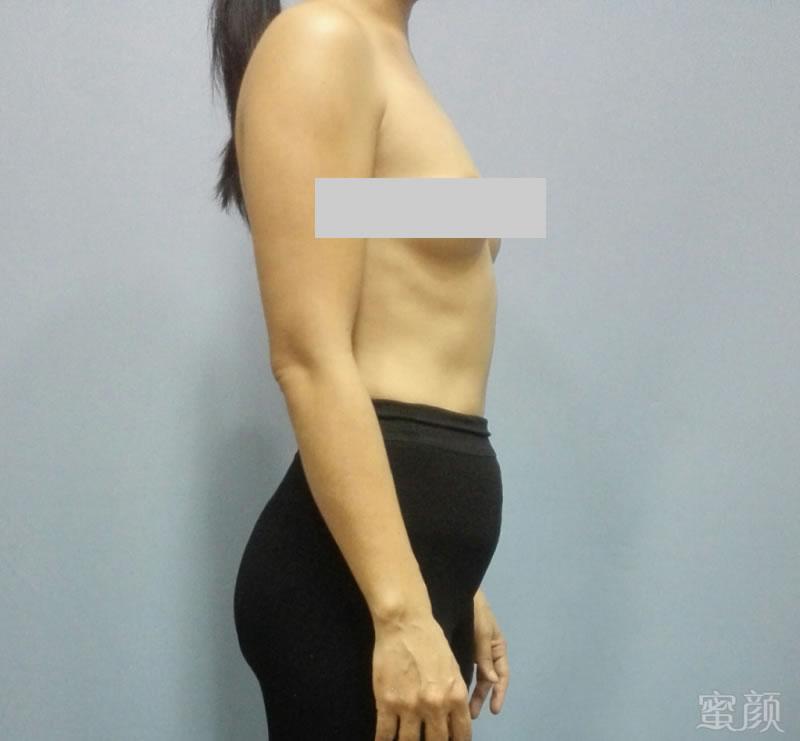 34岁才做隆胸手术的分享图片1