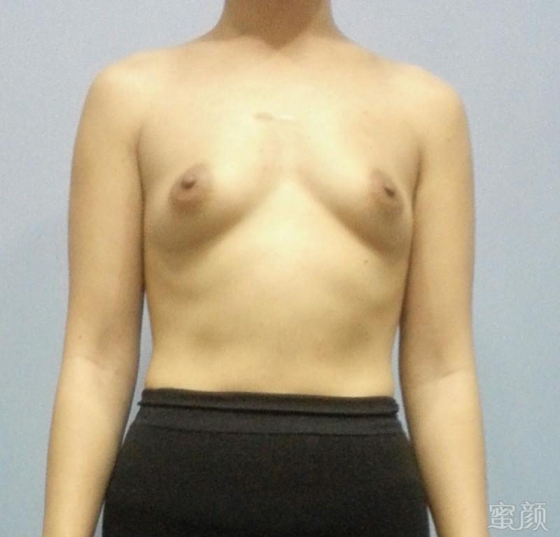 34岁才做隆胸手术的分享图片2