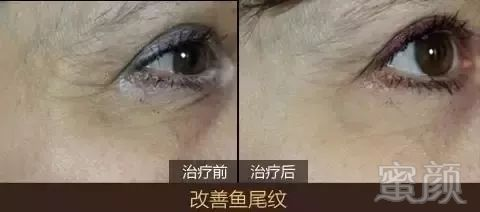 https://img.miyanlife.com/mnt/timg/191103/09353442U-4.jpg