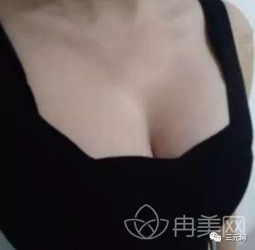 https://img.miyanlife.com/mnt/timg/191130/1124551L9-7.jpg