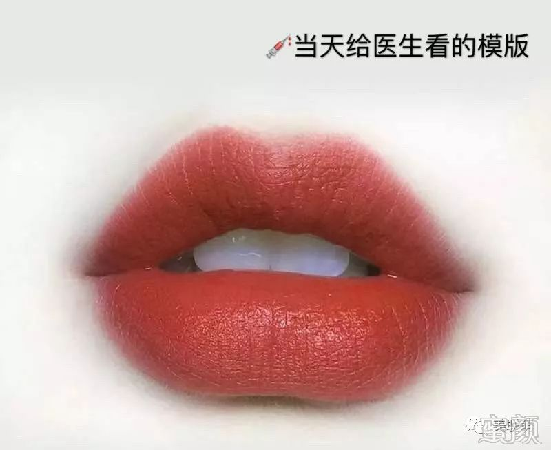 https://img.miyanlife.com/mnt/timg/191228/1120001T2-1.jpg