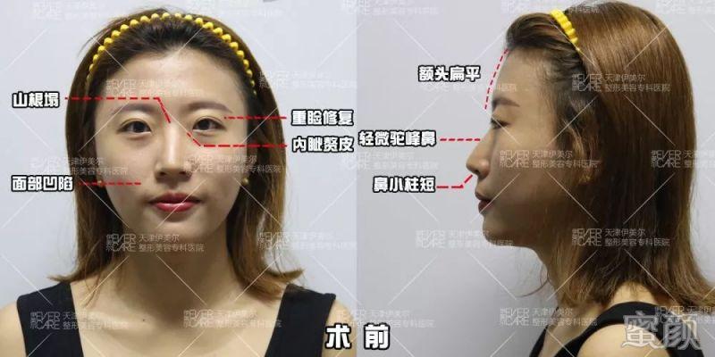 【求美者反馈】双眼皮修复遇上驼峰鼻,高难度打造我们共同努力