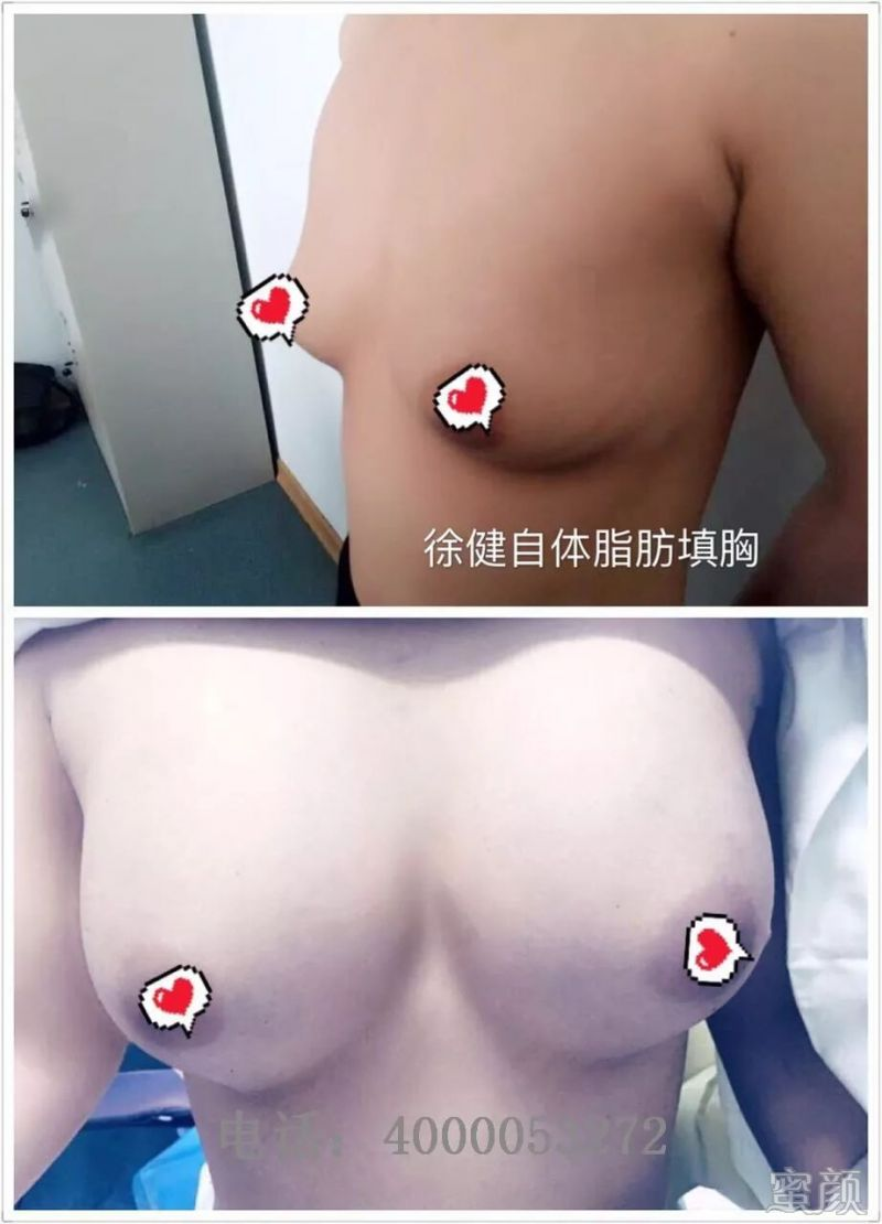 https://img.miyanlife.com/mnt/timg/200316/14040K451-5.jpg
