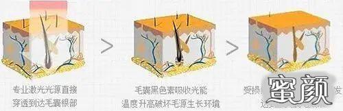 https://img.miyanlife.com/mnt/timg/201201/09421S023-4.jpg