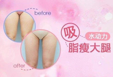 西安水动力吸脂有效瘦大腿塑型-