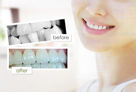 杭州隐形牙齿矫正-